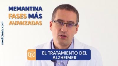 Alzheimer: tratamientos